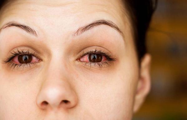 ochi rosii alergii-ww