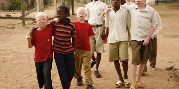 Albinoşii din Africa, hăituiţi din cauza superstiţiilor