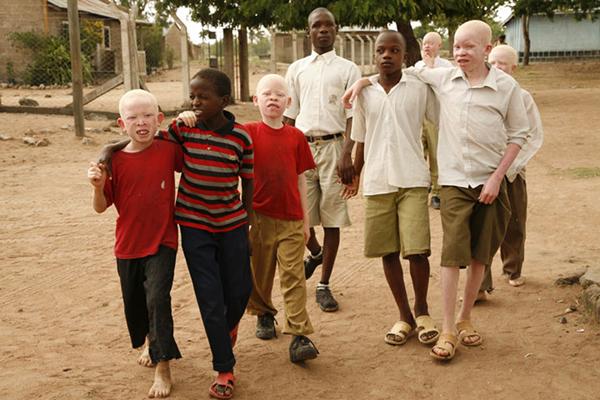 albinism-Africa